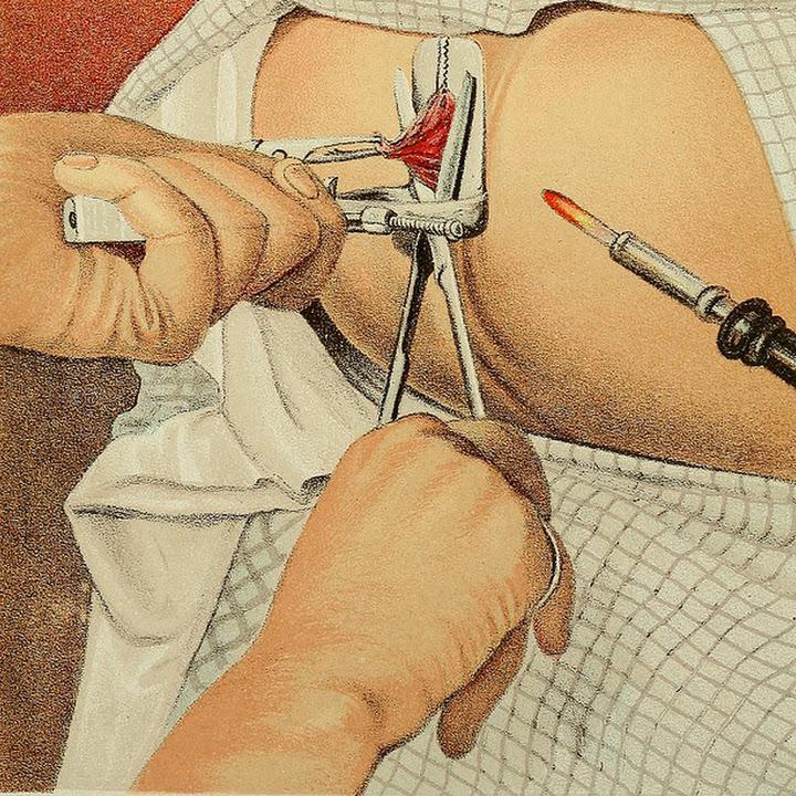 صورة اعراض البواسير , البواسير ما هي واعراضها وانواعها وطرق التخلص منها