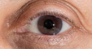 صورة علاج الهالات السوداء , اقوى الوصفات الطبيعية لتتخلص من الهالات