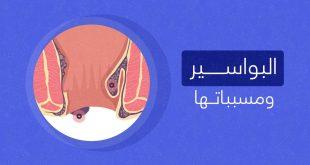 صورة مرض البواسير , تعرف على اهم الاعراض المميزة لتشخيص البواسير