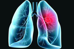 صورة اعراض سرطان الرئة , اشياء هامة وخطيرة يشتكى منها مريض سرطان الرئة