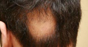 مرض الثعلبة، إذا كنت تعاني من هذا المرض فلا داعي للقلق