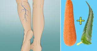 صورة علاج الدوالي، طريقة فعالة لعلاج دوالي الساقين