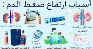 صورة اعراض ارتفاع ضغط الدم، ارتفاع ضغط الدم وفقدان البصر