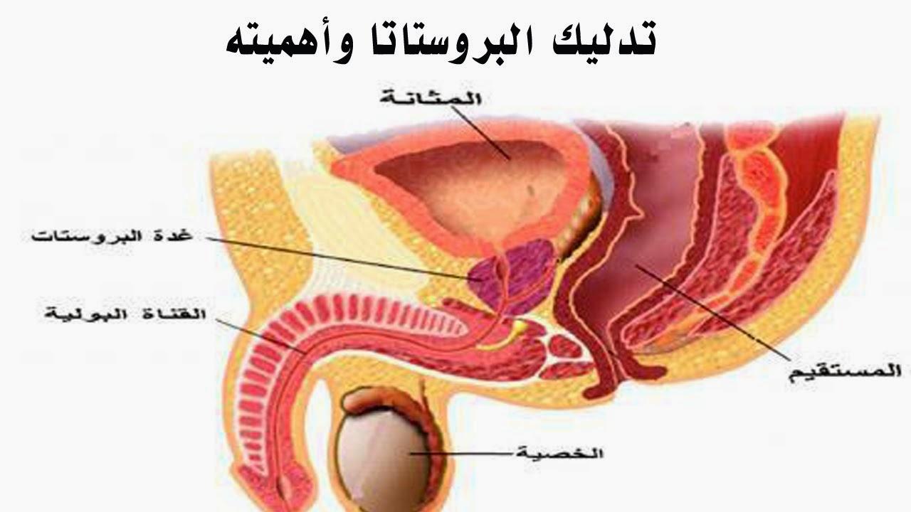 صورة اسباب تضخم البروستاتا , تعرف على اعراض تضخم البروستاتا و كيفية الوقاية منها