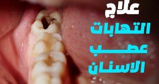 علاج التهاب عصب الاسنان بالاعشاب