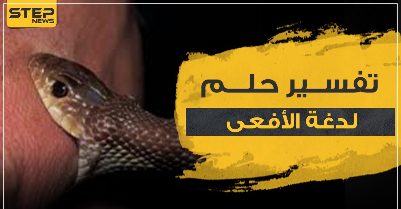 صورة تفسير لدغة الافعى في المنام 10613
